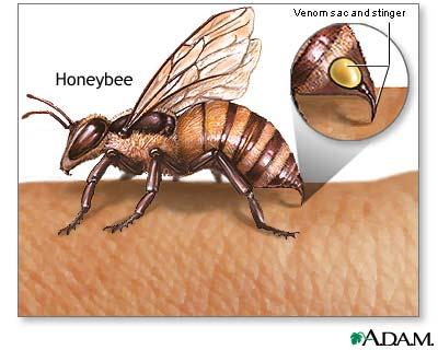 racun lebah